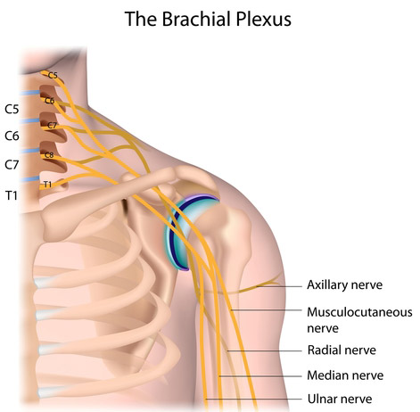 afectarea nervilor cu luxația articulației umărului