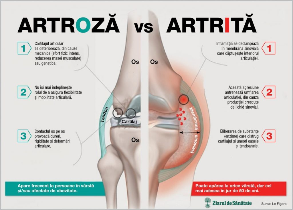 artrita artroza pe maini)