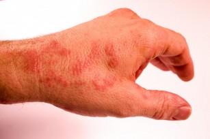 dureri articulare pete roșii pe)
