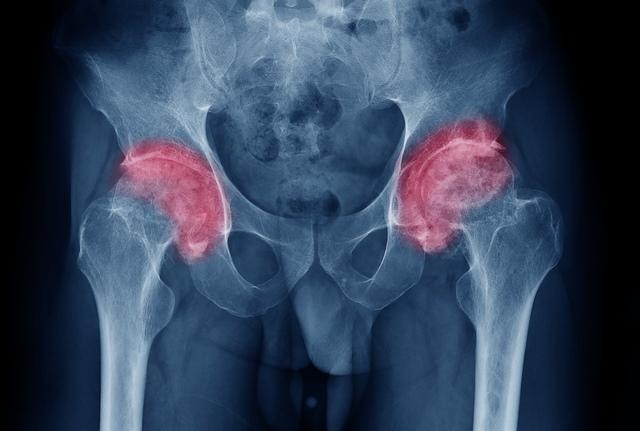 dureri severe la nivelul articulațiilor șoldurilor