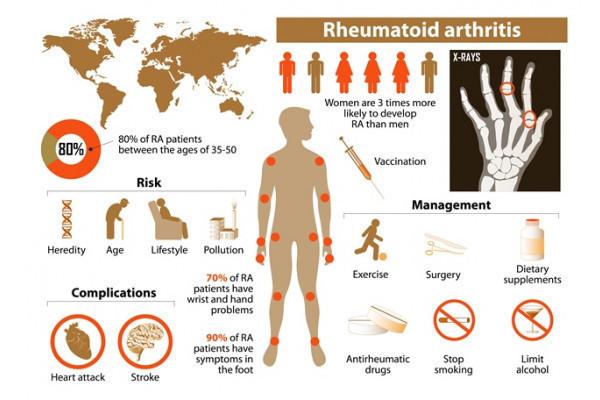 dureri articulare artrita reumatoidă)