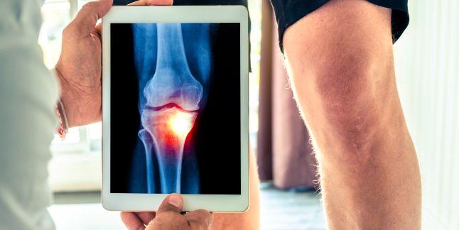Comparativ cu tratamentul durerii genunchiului)
