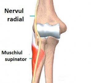 deteriorarea nervului radial al articulației cotului)