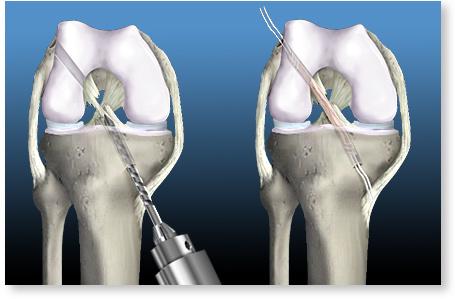 ligamentul cruciat al articulației genunchiului doare)