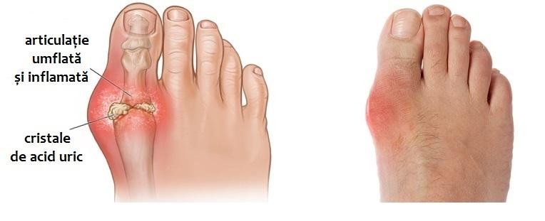 artrita acuta a articulatiilor piciorului