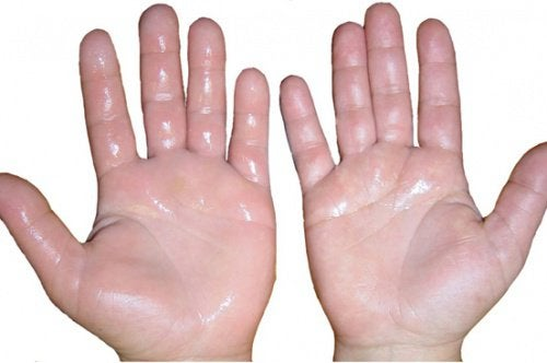 cum să amelioreze umflarea cu artrita mâinilor