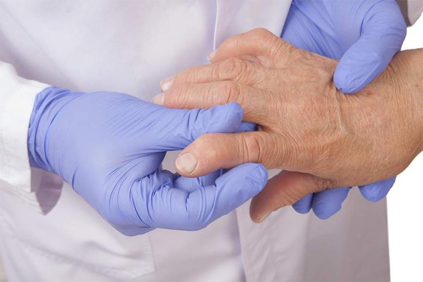 poliartrita reumatoida la incheietura mainii)