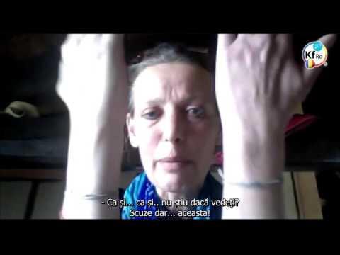 tratamentul inflamației articulației brațului