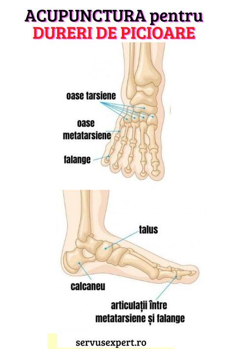 acupunctura pentru dureri de genunchi)