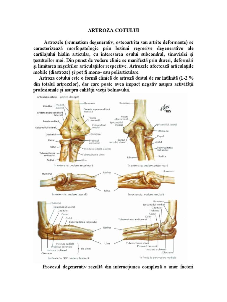 început artroza articulației cotului)