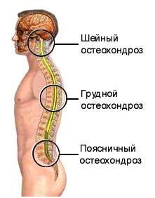 simptomele și tratamentul displaziei țesutului conjunctiv articulația genunchiului doare afară