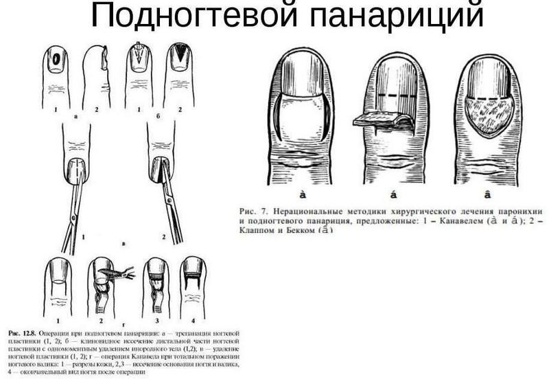 articulația din degetul mare este foarte dureroasă
