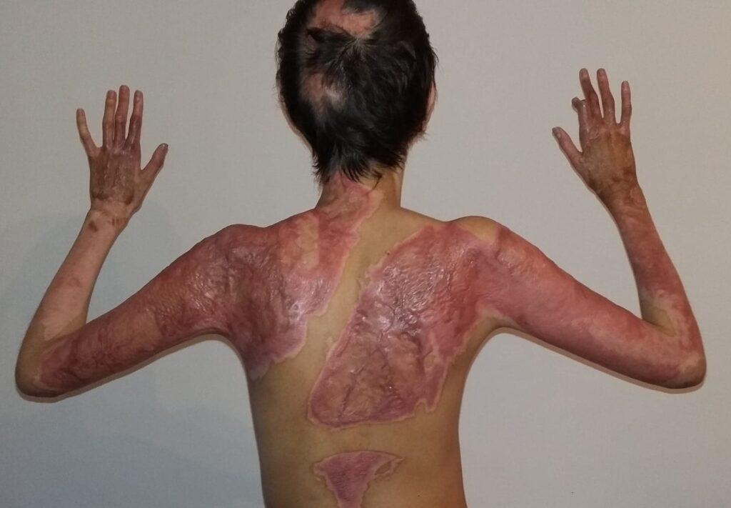 articulațiile de pe braț doare la 13 ani)