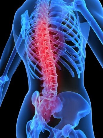 artrita articulațiilor coloanei vertebrale cervicale
