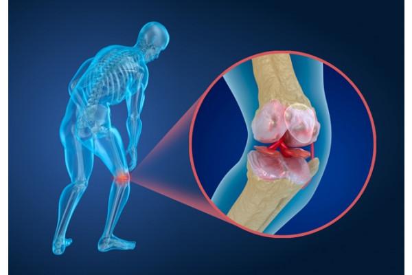 artroza articulației deteriorate