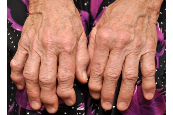 artroza articulațiilor de pe mâini
