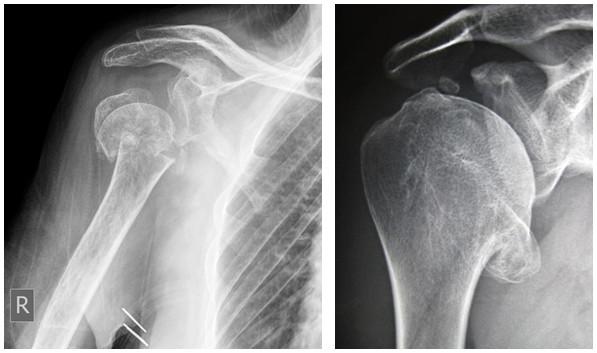 artroza etapelor radiologice ale articulației umărului)