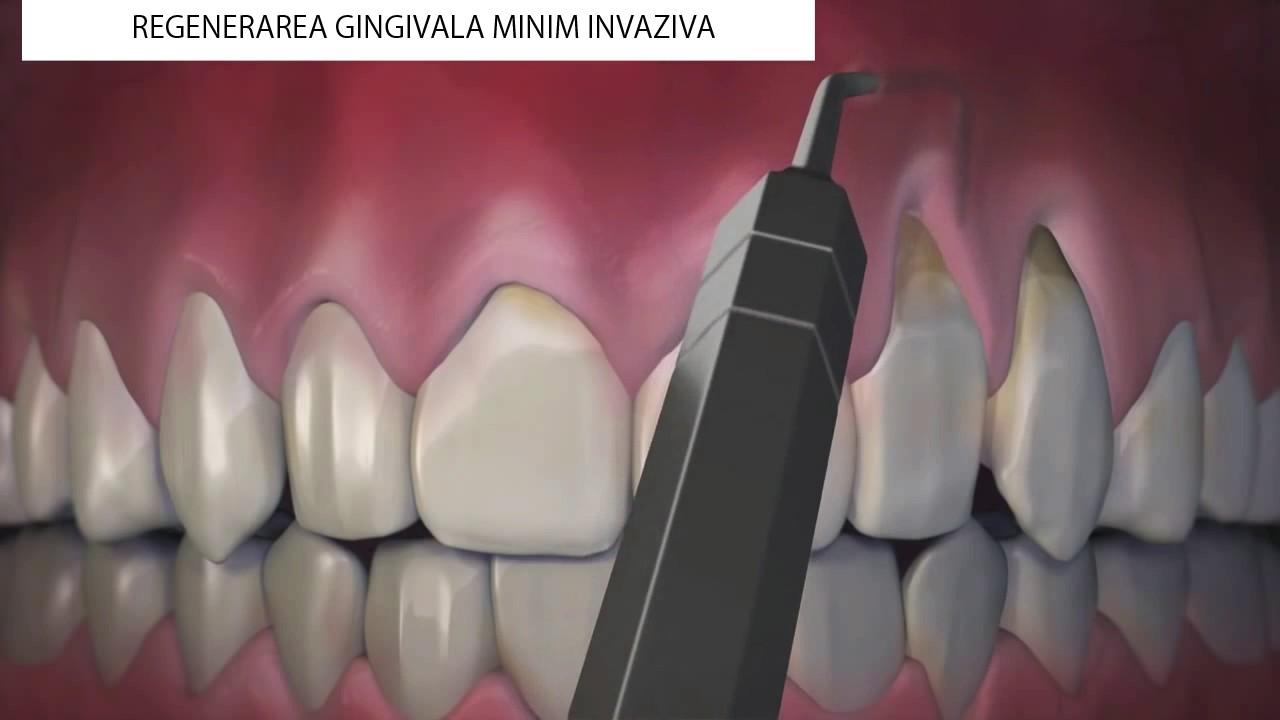 Artroza pentru tratarea gingiilor