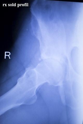 artroza semnelor radiologice ale șoldului)