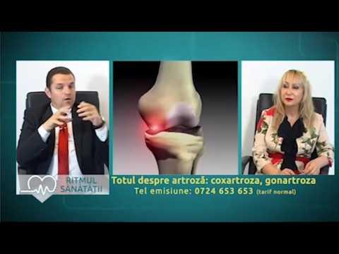 artroza sinovitei articulației șoldului)