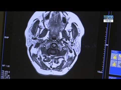 artroza tratamentului articulației sacroiliace