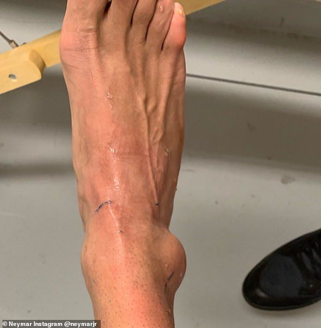 lovit pe articulația unui deget după o accidentare)