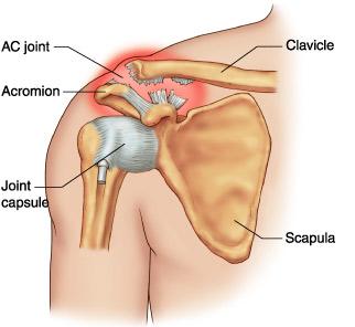 tratamentul rupturii ligamentului umărului)