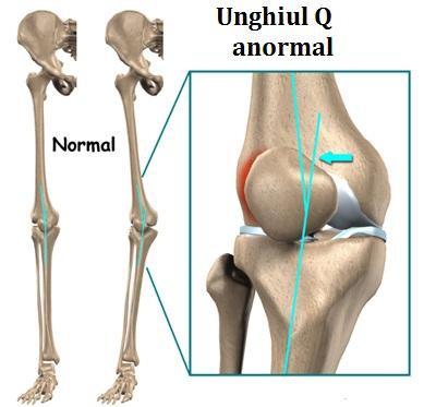 fluid în articulația genunchiului decât pentru a trata