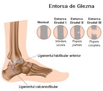 entorsa genunchiului cum să tratezi