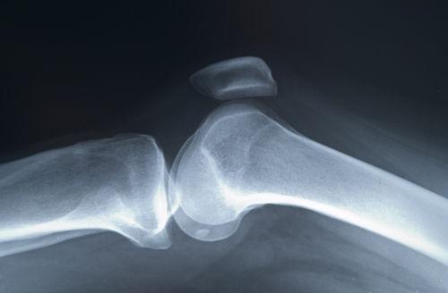Osteoporoza: cauze, simptome si tratament | thecage.ro