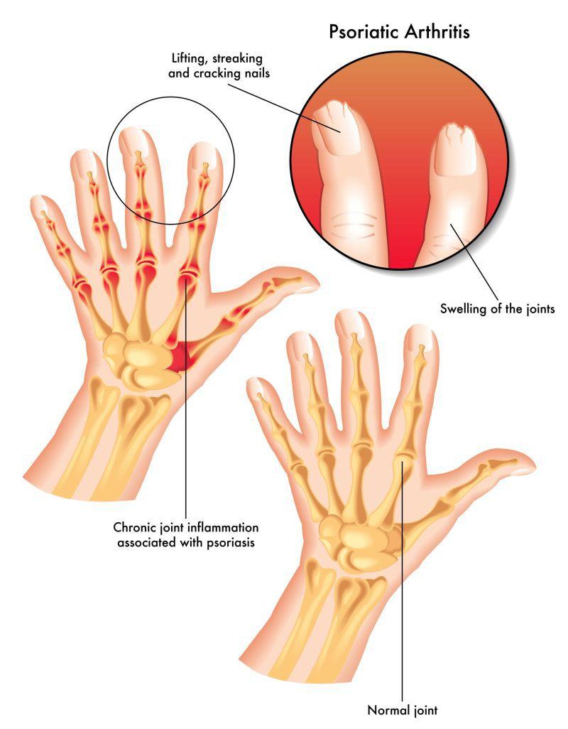 artrită tratament articular