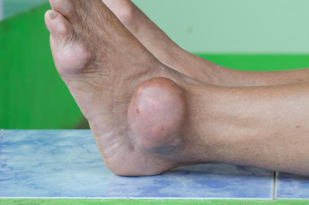 care tratează artrita piciorului guta)