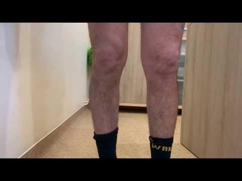 artroza argo a genunchiului