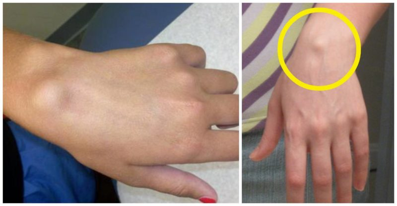 umflarea articulației mâinii drepte