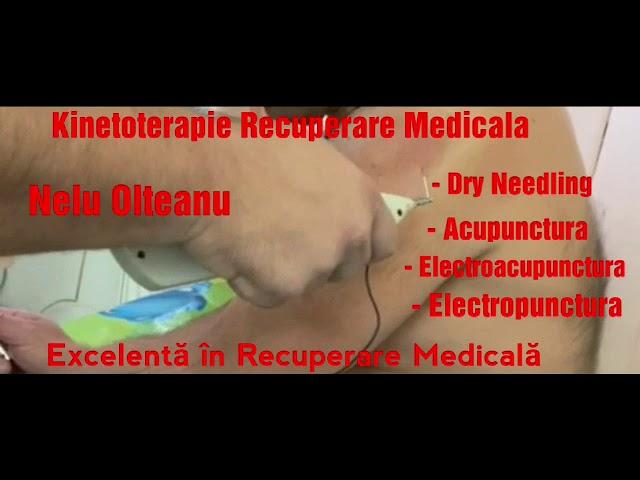 boli ale ligamentelor articulației umărului)
