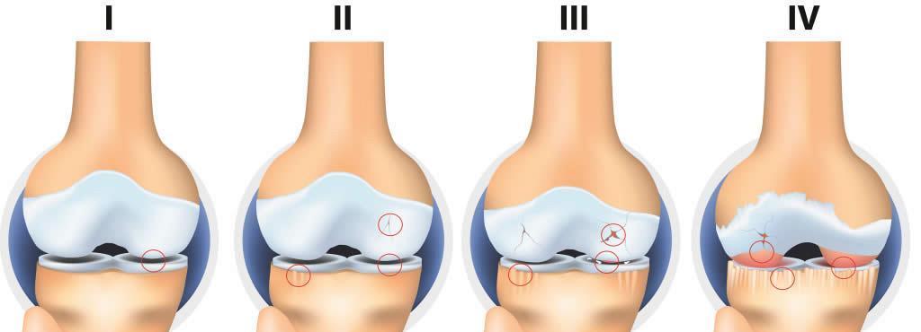 exfolierea cartilajului în tratamentul articulației genunchiului