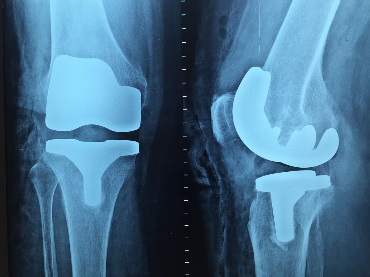 artrita septica a genunchiului