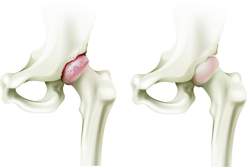 blocaj pentru durerea articulației șoldului)