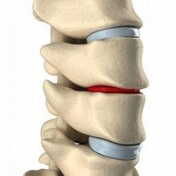 boli degenerative-distrofice ale articulațiilor și coloanei vertebrale.