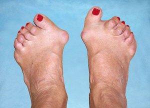 boli pe articulațiile picioarelor)