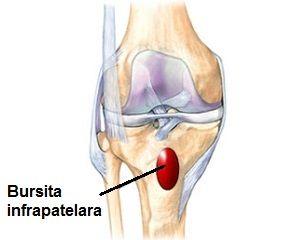bursita articulației genunchiului în latină)