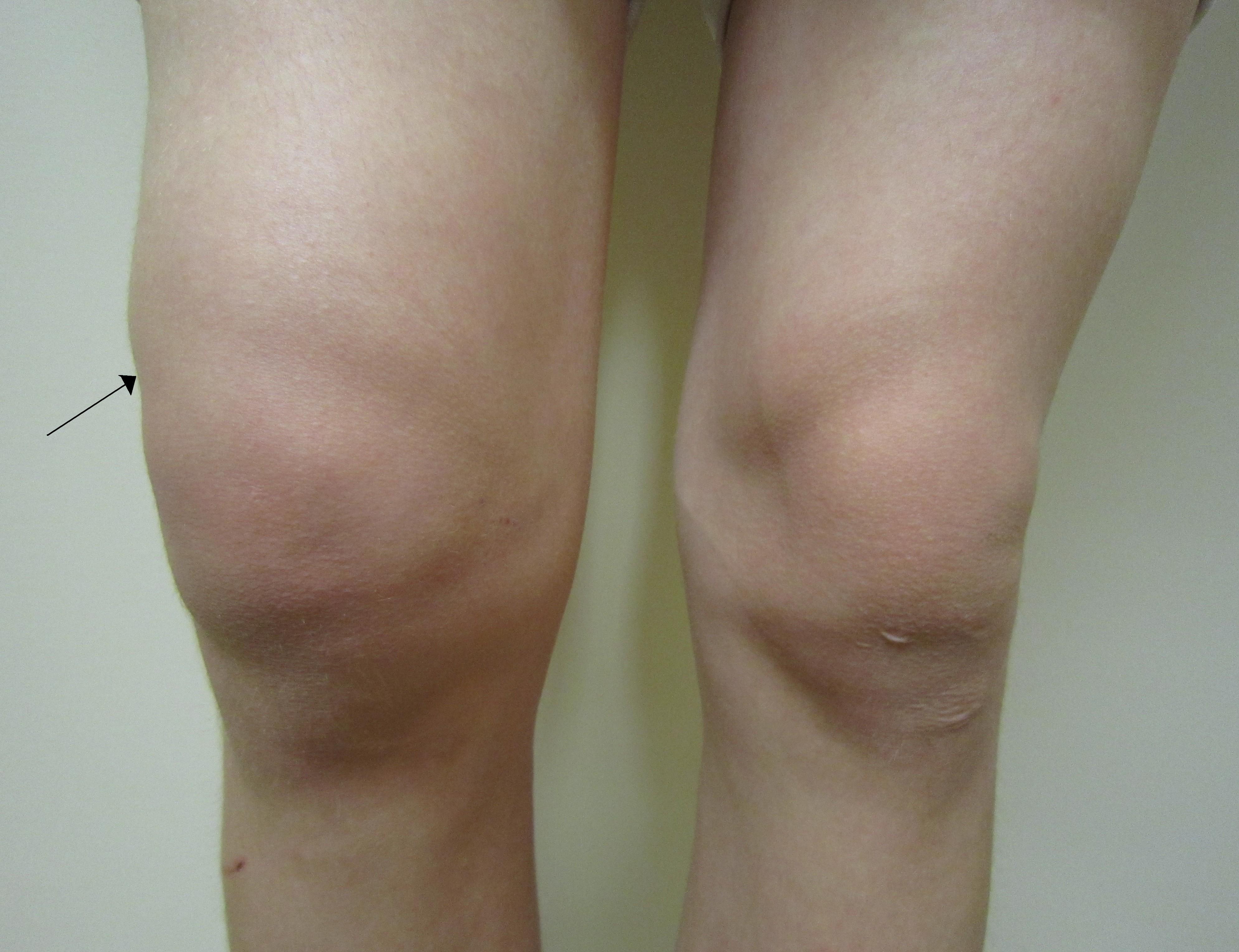 bursita simptomelor articulațiilor genunchiului și efectele tratamentului