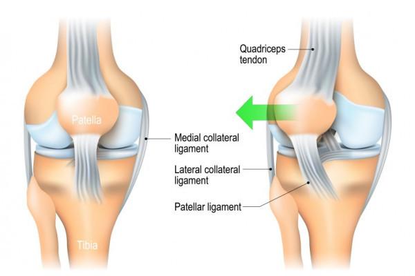 Luxația obișnuită a tratamentului articulației genunchiului