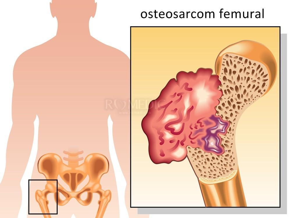 articulația artificială a șoldului doare
