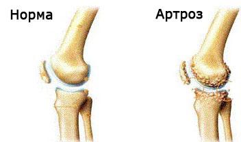 artroza osteoporozei a genunchiului