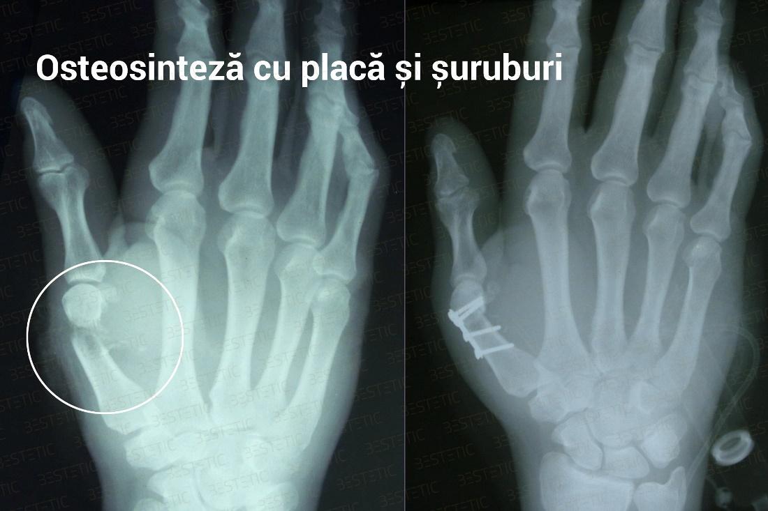 recuperarea unei mâini după fractura unei articulații radiale)