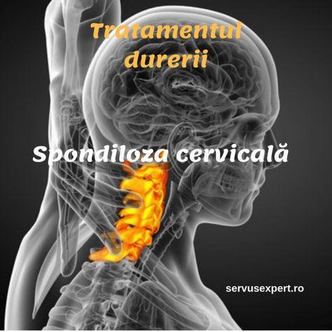 cum să tratezi durerea în articulația cervicală)