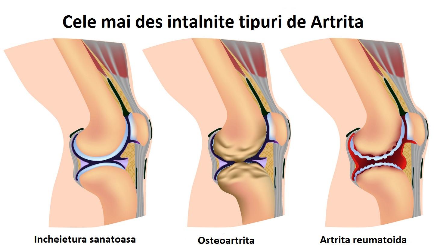 cum am tratat artrita piciorului)
