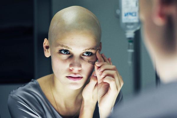 Dureri articulare dupa chimioterapie