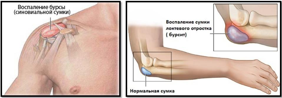 cum să înțelegeți dacă rănesc articulațiile